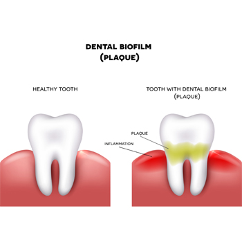 Dental Biofilm
