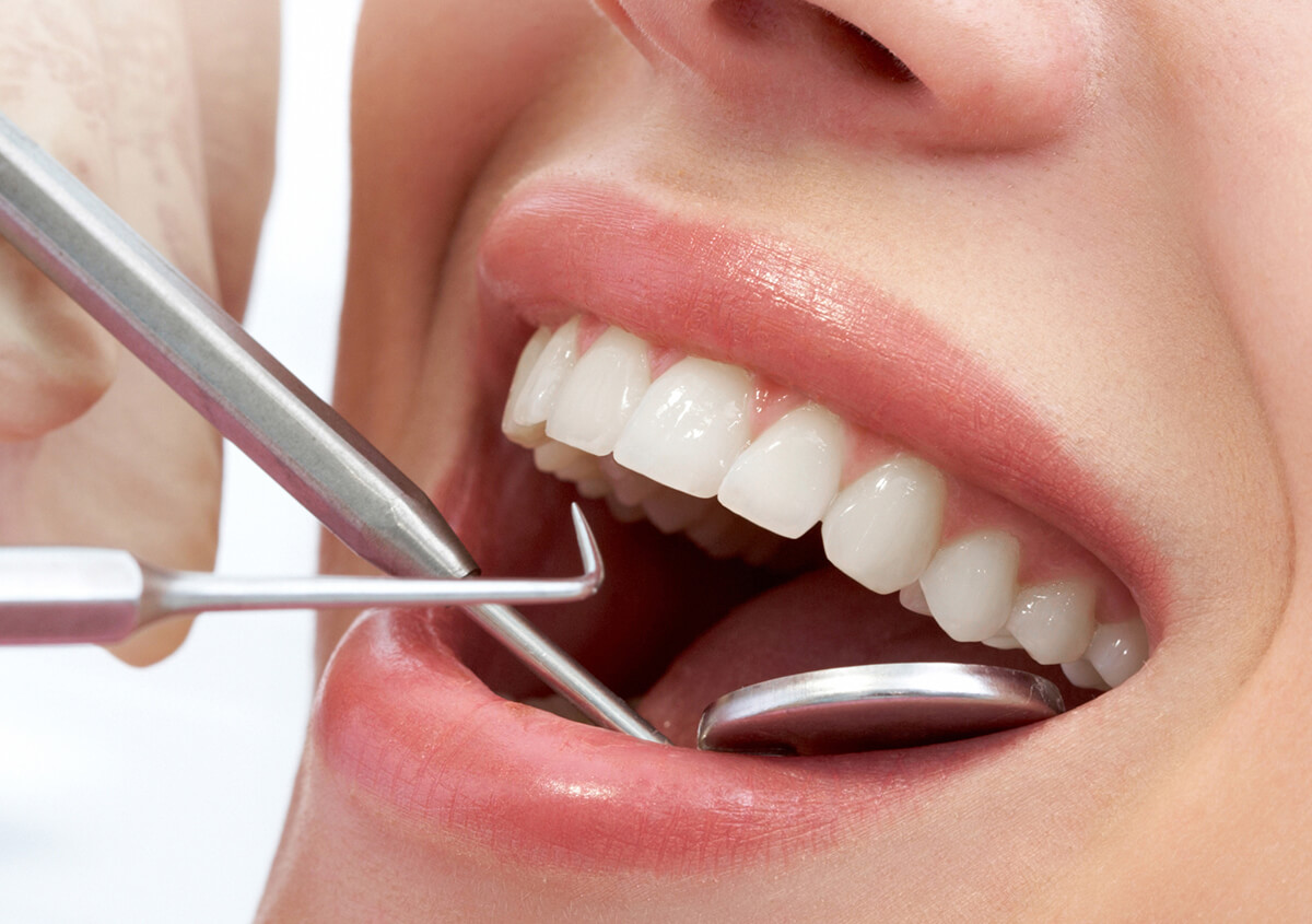 """Dental Patients Ask, """"can You Return Your Tooth to Its Original Condition?"""" in Clearwater, FL, Area"""