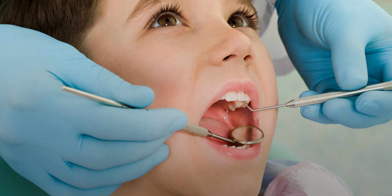 How Do We Detect Cavities Holistically in Clearwater