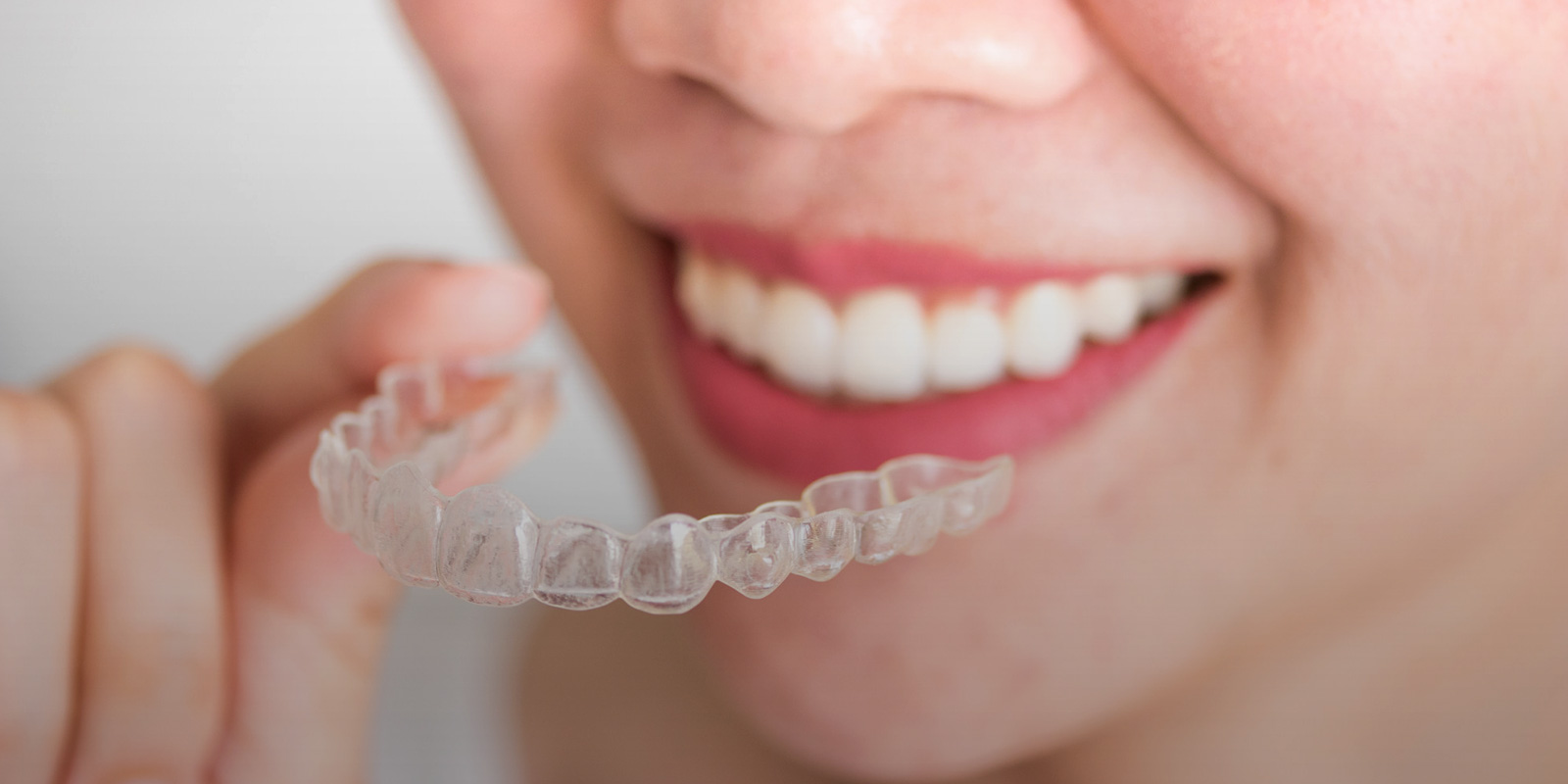 Invisalign Treatment Clearwater FL