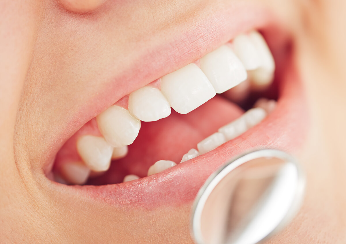 Myobrace for Adults at Natural & Cosmetic Dentistry in Clearwater FL Area