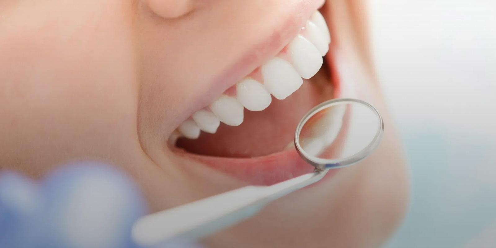Non-Surgical Gum Disease Treatment Clearwater FL
